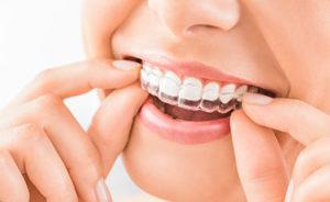 dental braces tx, person putting on clear braces