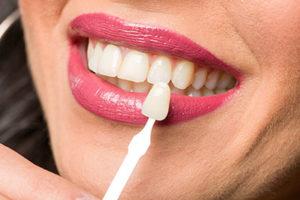 dental veneers tx, veneer being held up to woman's natural teeth