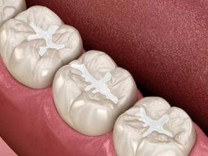 examples of Dental Sealants