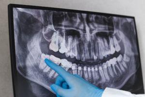 dental chart showing impacted teeth