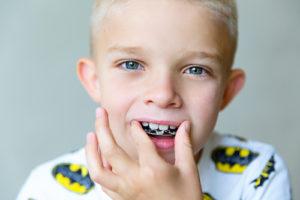 child who needs orthodontics