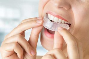 person putting in nightguard for teeth grinding