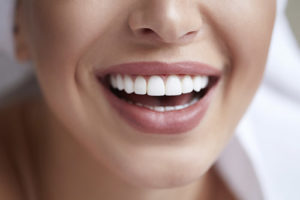 woman after teeth whitening